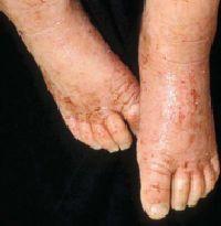 Disease Management: Atopic Dermatitis