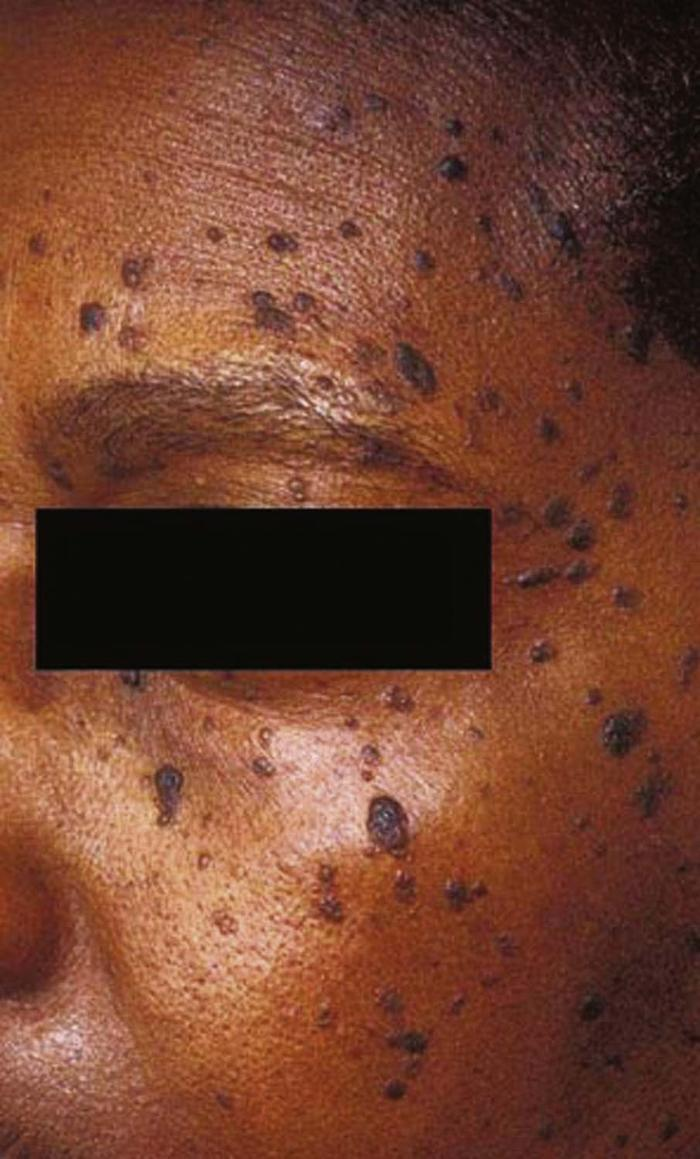 Common Pigmentation Disorders - American Family
