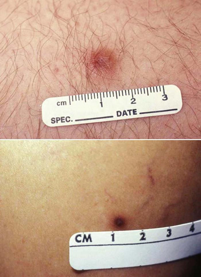 Skin cancer benign vs malignant - p5net.ro - Skin cancer benign vs malignant