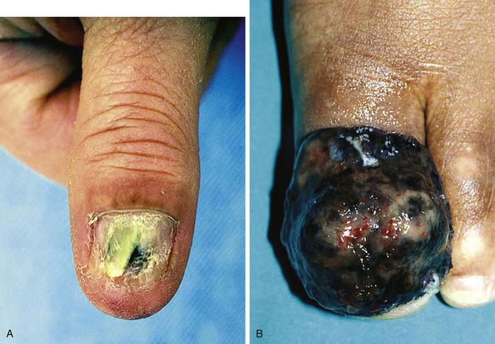 melanoma on toes