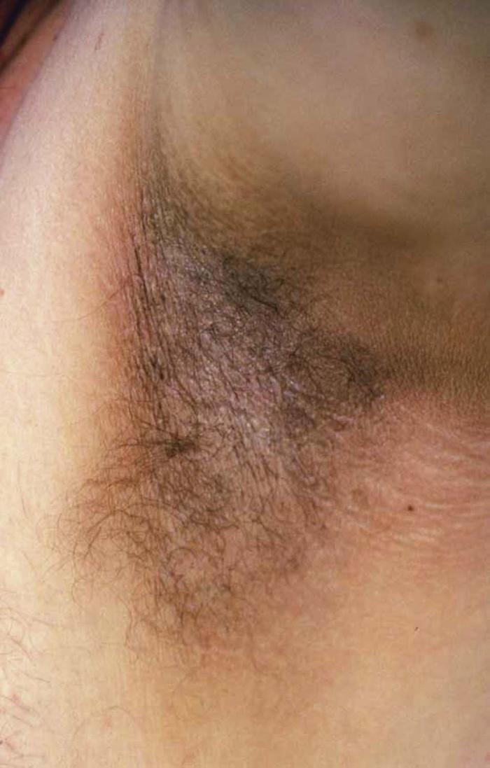 Acanthosis nigricans in the axilla of an obese man.