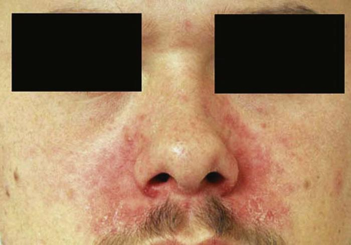 Skin rash: Common Related Symptoms and Medical Conditions