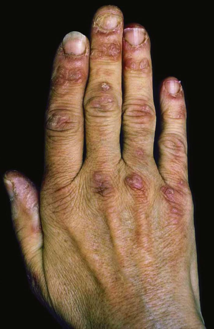 Dermatologic Signs of Systemic Disease