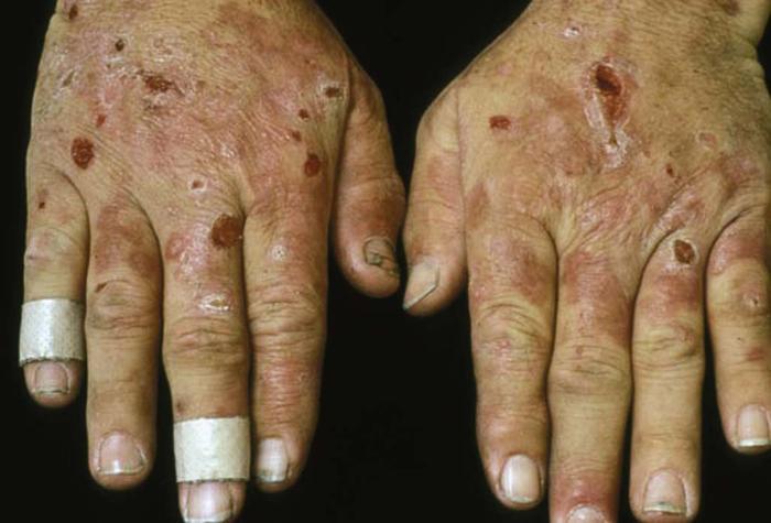 Dermatologic Signs of Systemic Disease