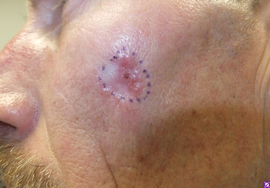 Disease Management Nonmelanoma Skin Cancer