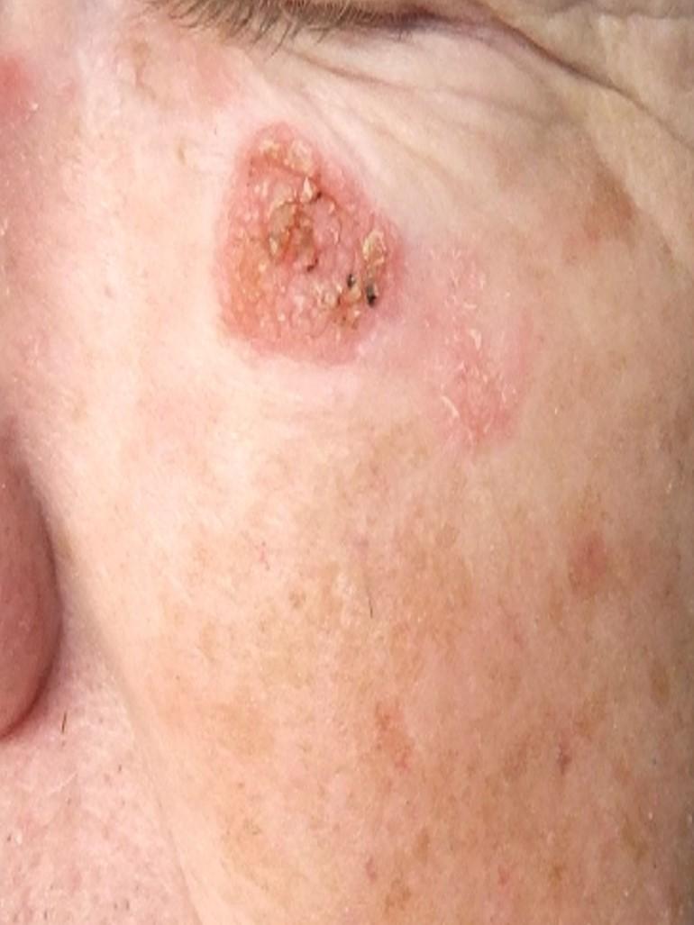 Disease Management Nonmelanoma Skin Cancer