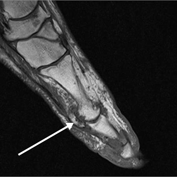 Gout and Calcium Pyrophosphate Deposition Disease
