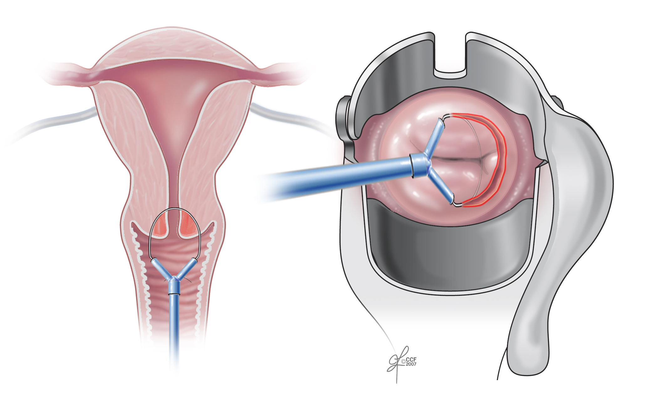 Hpv causes ovarian cancer